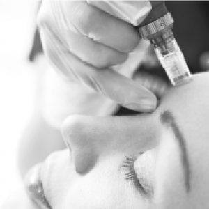 microneedle-stem-cell-facial