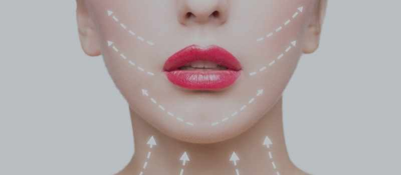 MINT non surgical facelift example